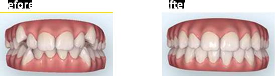 簡易シミュレーションイメージ
